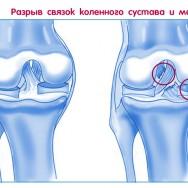Если болят колени у танцора